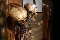 Skeleton at Ripley's